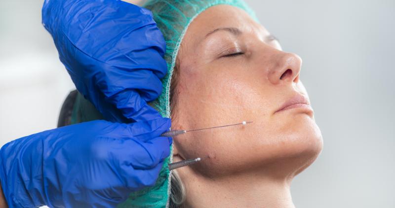 Retensado de la piel con hilos tensores y Redensificacion Guadix